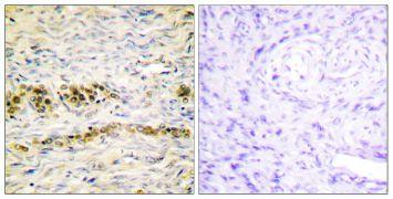 Phospho-AKT1 (Tyr474) Antibody (PA5-38351)