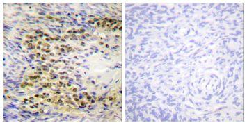 Phospho-AKT1 (Thr72) Antibody (PA5-38353)