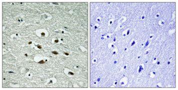 Phospho-CHK1 (Ser296) Antibody (PA5-38359)