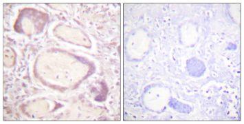 Phospho-Cyclin B1 (Ser147) Antibody (PA5-38360)