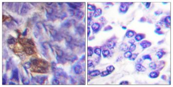 MSK1 Antibody (PA5-38369)