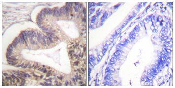 Phospho-PAK2 (Ser20) Antibody (PA5-38381)