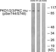 Phospho-PKC mu (Ser738, Ser742) Antibody (PA5-38386)