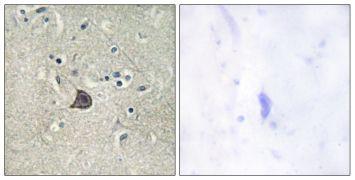 Phospho-PLCB3 (Ser537) Antibody (PA5-38389)