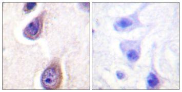 Phospho-PLD1 (Ser561) Antibody (PA5-38390)