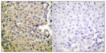 Phospho-PP1 alpha (Thr320) Antibody (PA5-38391)