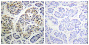 Phospho-14-3-3 theta (Ser232) Antibody (PA5-38396)