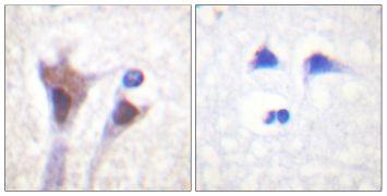 Phospho-14-3-3 zeta (Thr232) Antibody (PA5-38398)