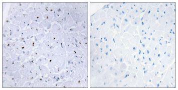Phospho-53BP1 (Ser6) Antibody (PA5-38399)