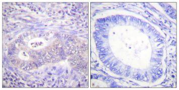 Phospho-PFKFB2 (Ser483) Antibody (PA5-38400)