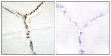 Phospho-AHR (Ser36) Antibody (PA5-38404)