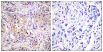 Phospho-PKC Pan (Thr497) Antibody (PA5-38418)