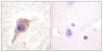 Phospho-PKC zeta (Thr560) Antibody (PA5-38419)