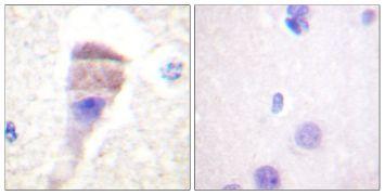 Phospho-PKC mu (Ser205) Antibody (PA5-38420)