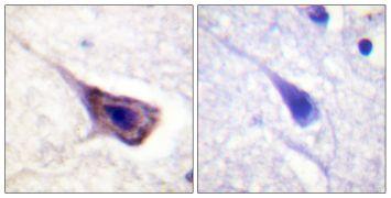 Phospho-BAD (Ser134) Antibody (PA5-38427)
