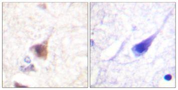 Phospho-CaMKIV (Thr196, Thr200) Antibody (PA5-38435)