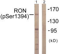 Phospho-RON (Ser1394) Antibody (PA5-38441)