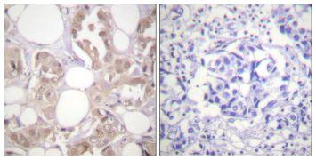 Phospho-CDK7 (Thr170) Antibody (PA5-38452)