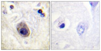 Phospho-Connexin 43 (Ser261) Antibody (PA5-38459)