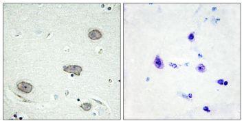 Phospho-CSF1R (Tyr809) Antibody (PA5-38460)