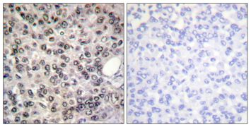 Phospho-DDX5 (Tyr593) Antibody (PA5-38471)