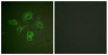 Phospho-EphB1/EphB2 (Tyr594, Tyr604) Antibody (PA5-38480)