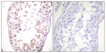 Phospho-HDAC6 (Ser22) Antibody (PA5-38498)