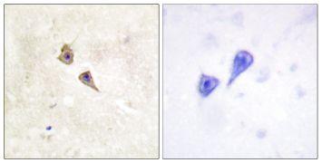 Phospho-IFNAR1 (Tyr466) Antibody (PA5-38502)