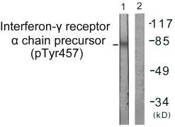Phospho-IFNGR1 (Tyr457) Antibody (PA5-38504)