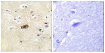 NMDAR2A/NMDAR2B Antibody (PA5-38506)