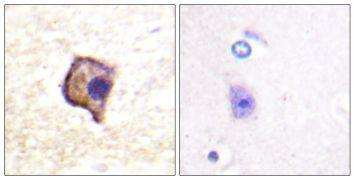 RET Antibody (PA5-38509)