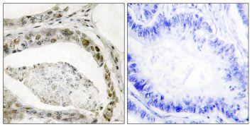 Phospho-SMAD3 (Ser208) Antibody (PA5-38521)