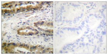 Phospho-VEGF Receptor 2 (Tyr1054) Antibody (PA5-38540)