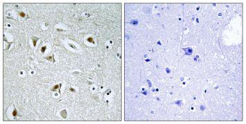 CDK2AP2 Antibody (PA5-38550)