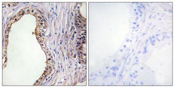 LRAT Antibody (PA5-38556)