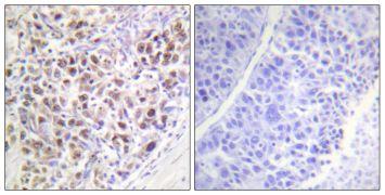 Phospho-Aurora B (Thr232) Antibody (PA5-38557)