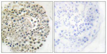 TRIM16 Antibody (PA5-38558)