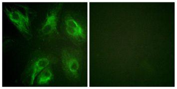 Phospho-KCNIP3 (Ser63) Antibody (PA5-38564)