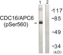 Phospho-APC6 (Ser560) Antibody (PA5-38568)