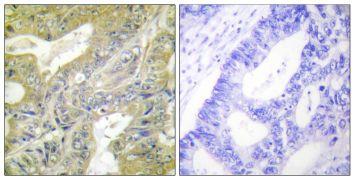 HEXB Antibody (PA5-38571)