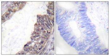 Phospho-KCNJ3 (Ser185) Antibody (PA5-38572)