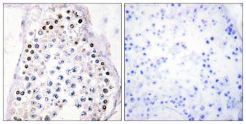HOXA1 + B1 + D1 Antibody (PA5-38578)
