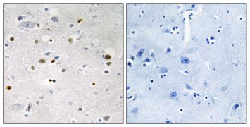ZNF7 Antibody (PA5-38583)