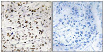 Phospho-HMGN1 (Ser21) Antibody (PA5-38586)