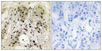 HMGN1 Antibody (PA5-38587)