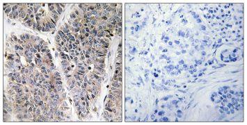 NBL1 Antibody (PA5-38608)