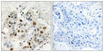 AFF1 Antibody (PA5-38623)