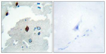 PTTG Antibody (PA5-38629)