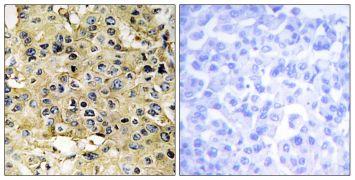 TMPRSS15 Antibody (PA5-38646)