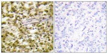 CSB Antibody (PA5-38656)